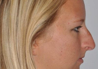 primary-rhinoplasty-houston-tx-9218
