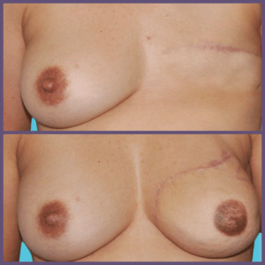 Results from DIEP Flap Breast Reconstruction