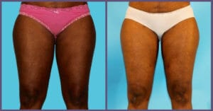 Results of thigh lift Houston plastic surgeons