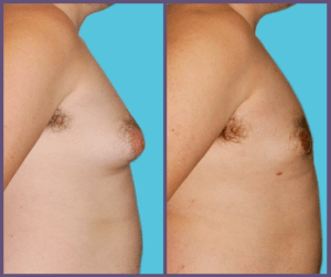Results from Gynecomastia Surgery Before and After