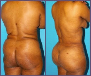 Results of a Brazilian Butt Lift
