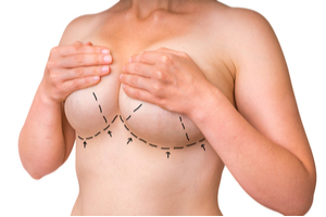 Breast Lift vs. Breast Augmentation: What's the Difference