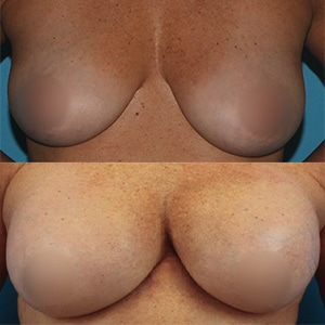 diep flap augmentation before and after